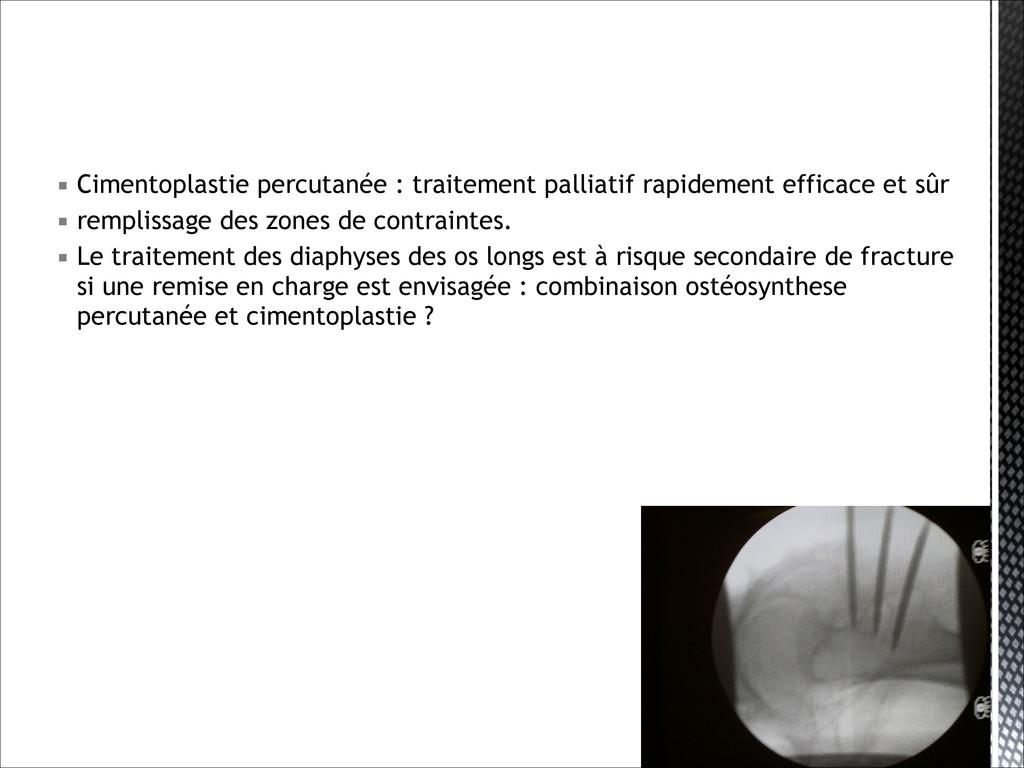 ▪ Cimentoplastie percutanée : traitement pallia...