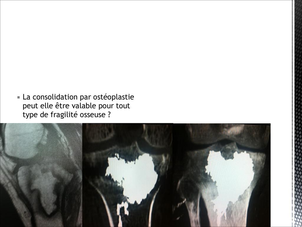 ▪ La consolidation par ostéoplastie peut elle ê...