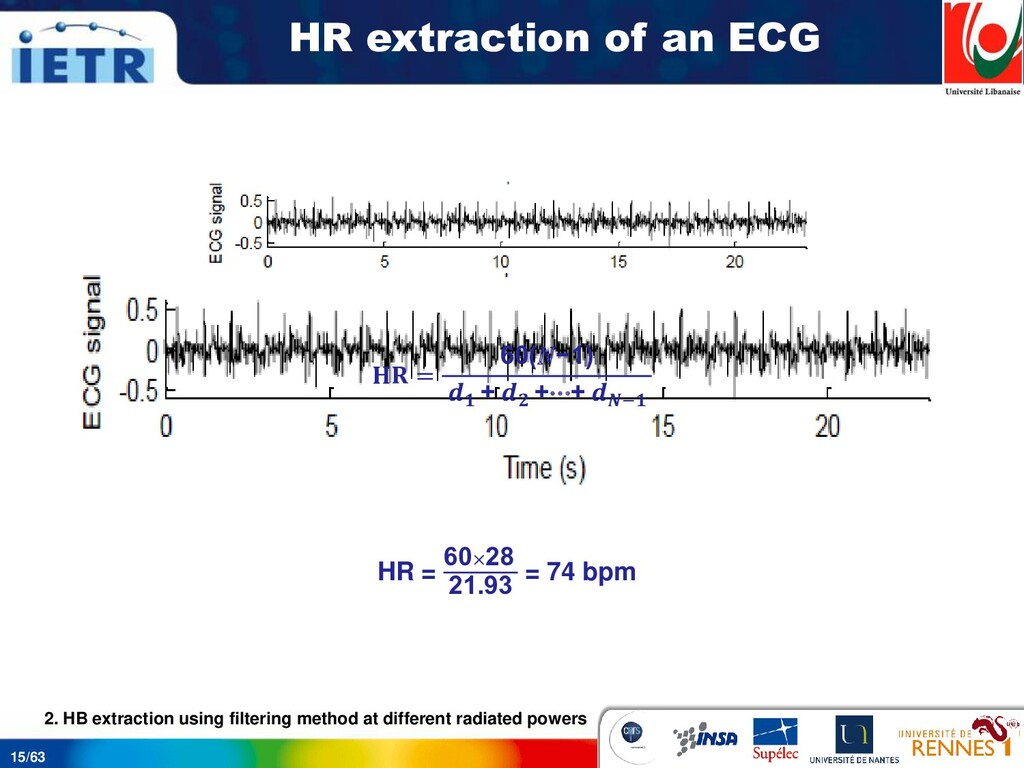 15/63 HR extraction of an ECG 28 peaks are obta...