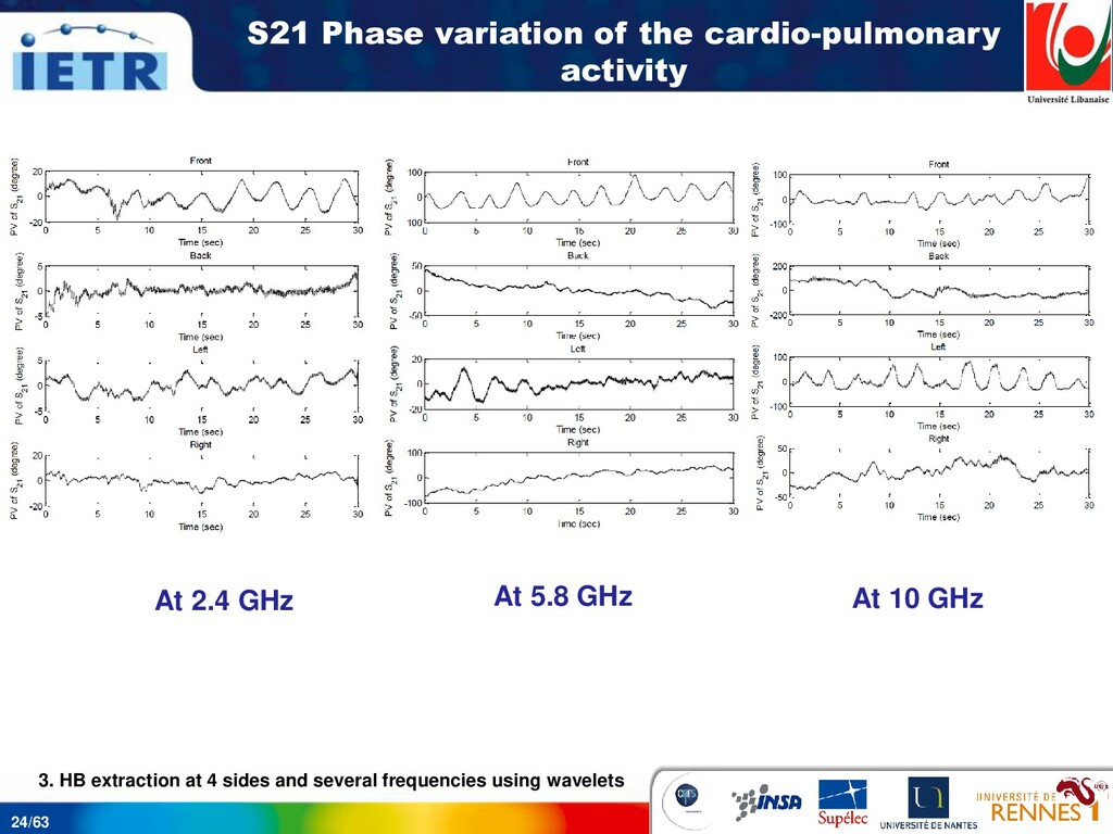 24/63 S21 Phase variation of the cardio-pulmona...