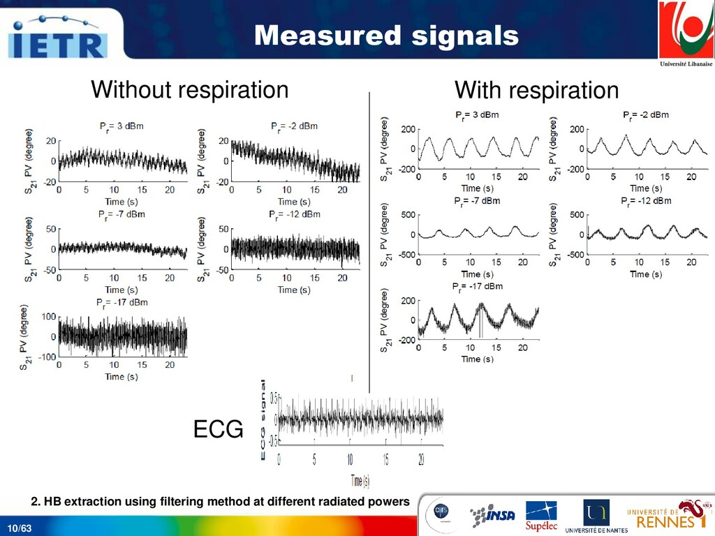 10/63 Measured signals ECG Without respiration ...