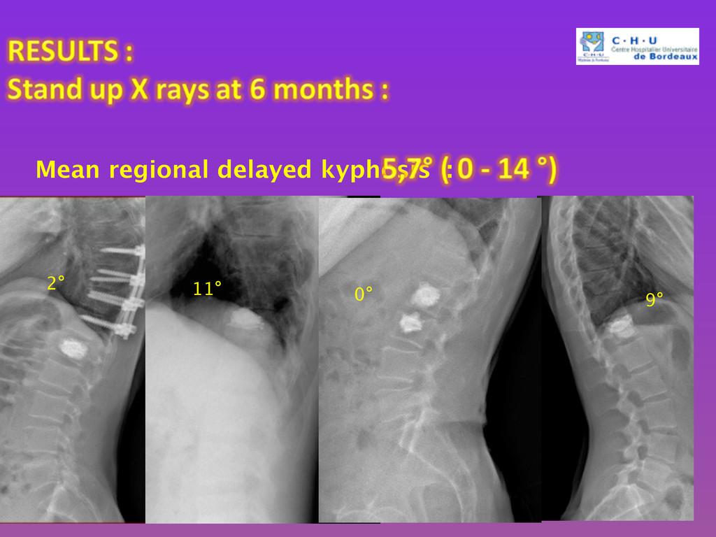 Mean regional delayed kyphosis : 2° 11° 9° 0°