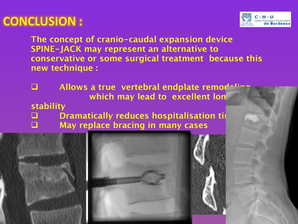 The concept of cranio-caudal expansion device S...