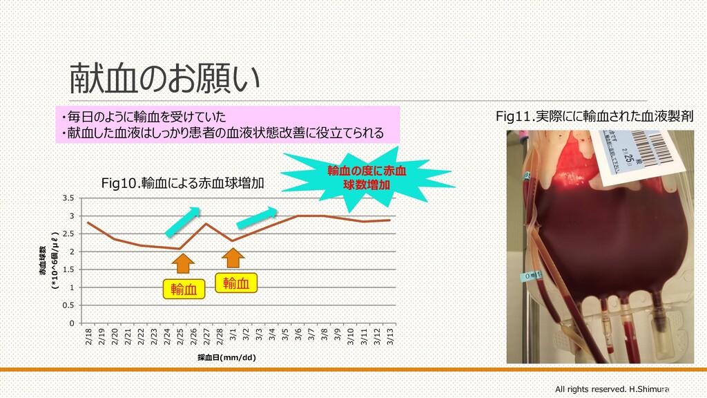 献血のお願い 21 Fig11.実際にに輸血された血液製剤 0 0.5 1 1.5 2 2.5...
