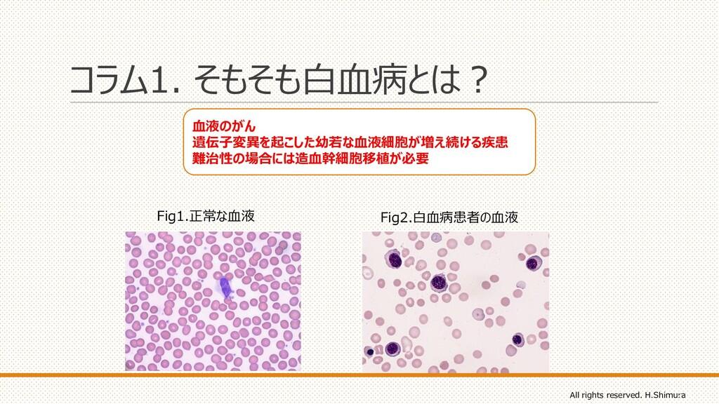 コラム1. そもそも白血病とは? Fig1.正常な血液 Fig2.白血病患者の血液 血液のがん...
