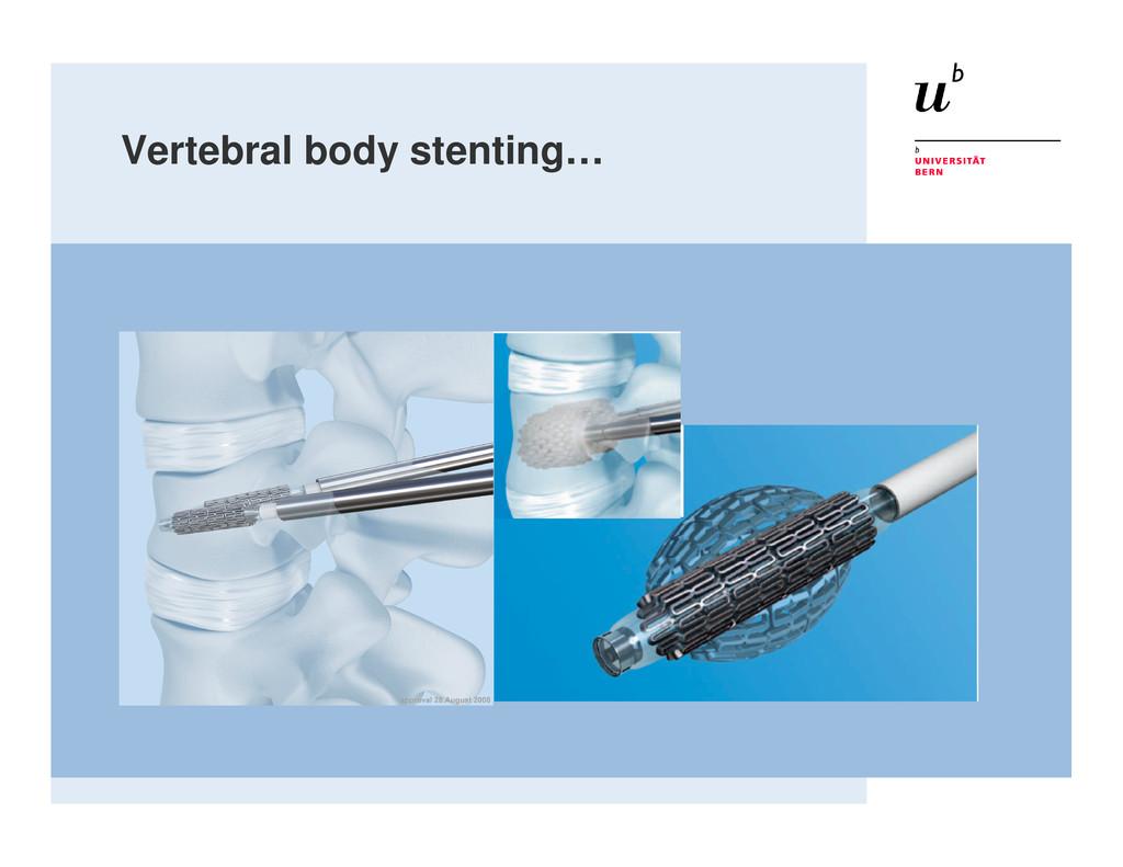 Vertebral body stenting…