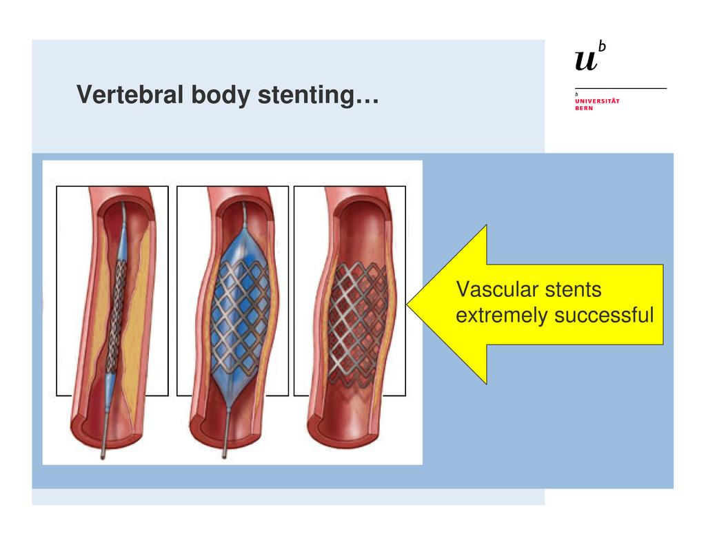 Vertebral body stenting… Vascular stents extrem...