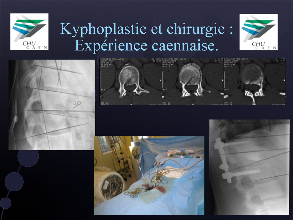 Kyphoplastie et chirurgie : Expérience caennais...