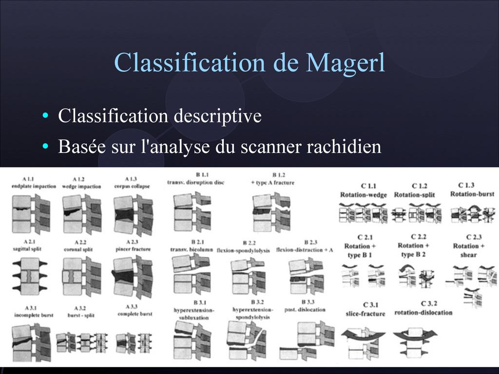Classification de Magerl  Classification descr...