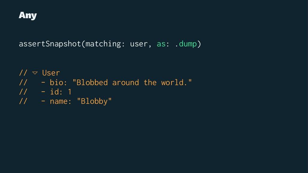 Any assertSnapshot(matching: user, as: .dump) /...
