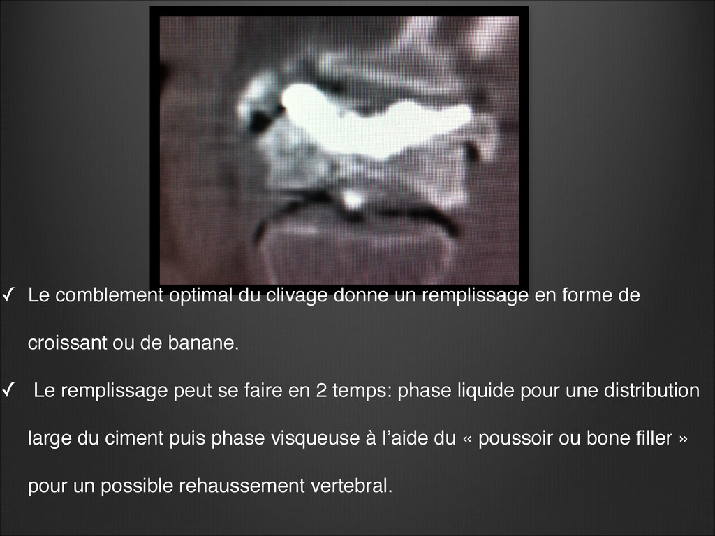 ✓ Le comblement optimal du clivage donne un rem...