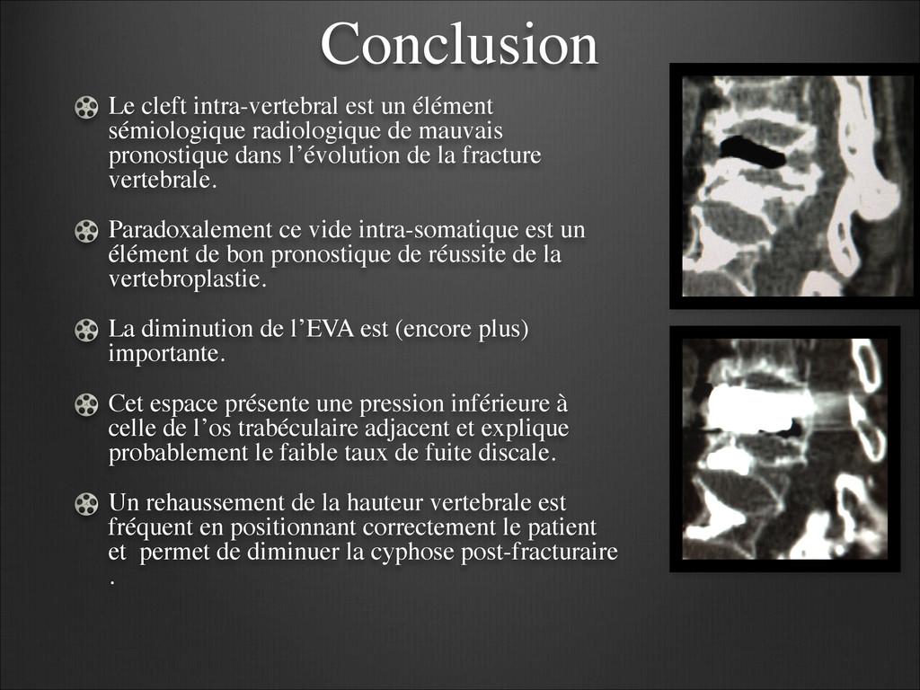 Conclusion Le cleft intra-vertebral est un élém...