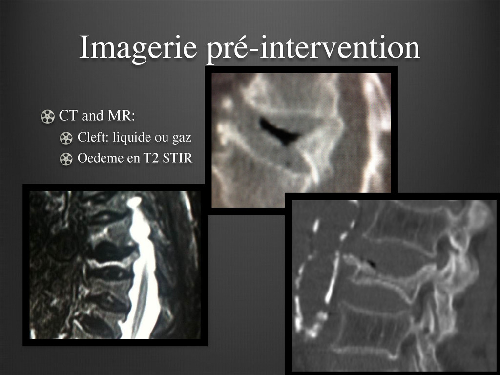 Imagerie pré-intervention CT and MR:  Cleft: ...