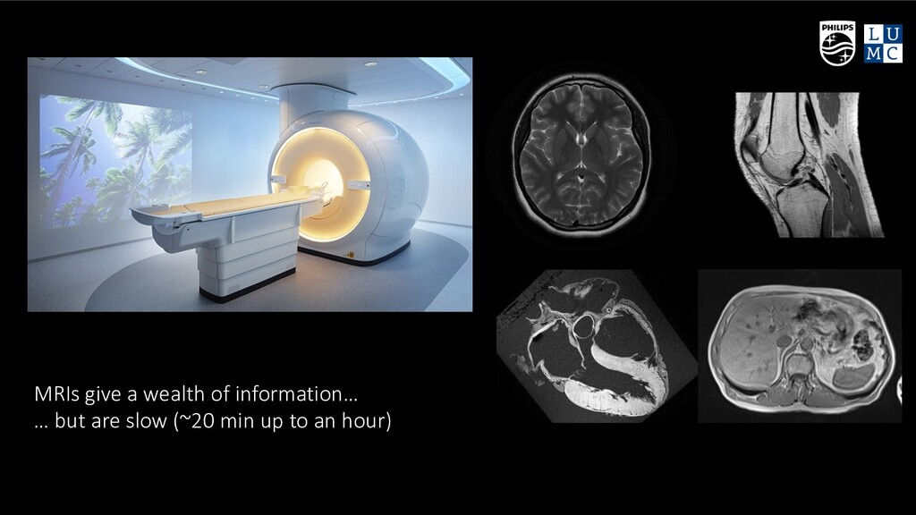© Philips - Confidential MRIs give a wealth of ...