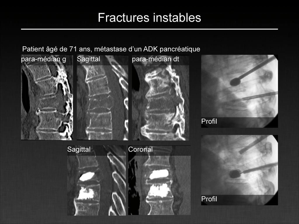 Fractures instables Patient âgé de 71 ans, méta...