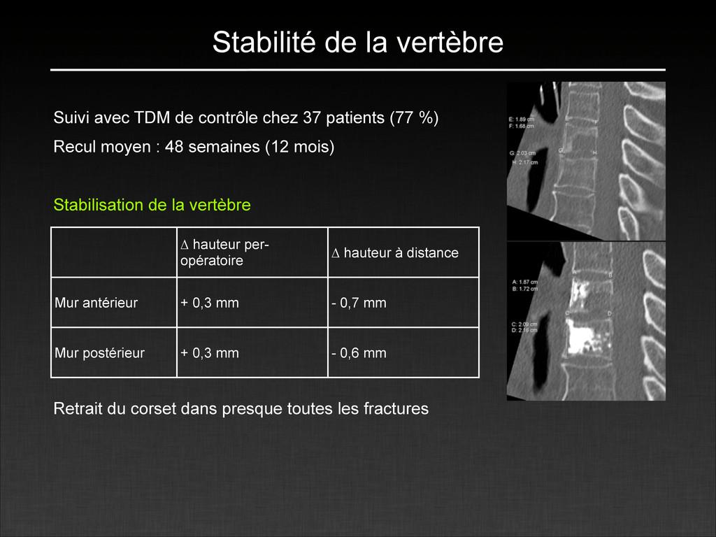 Stabilité de la vertèbre Suivi avec TDM de cont...