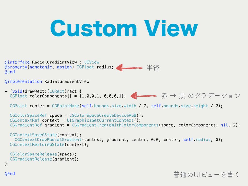 $VTUPN7JFX @interface RadialGradientView : UIV...