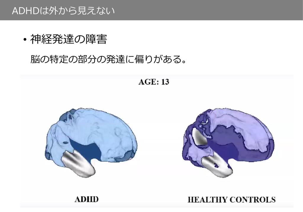ADHDは外から⾒えない • 神経発達の障害 脳の特定の部分の発達に偏りがある。
