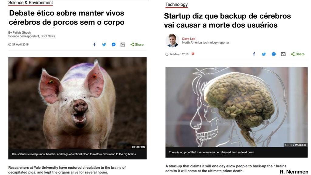 Debate ético sobre manter vivos cérebros de por...