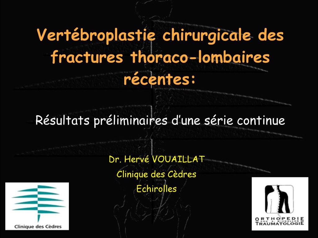 Vertébroplastie chirurgicale des fractures thor...
