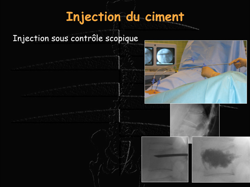 Injection du ciment Injection sous contrôle sco...