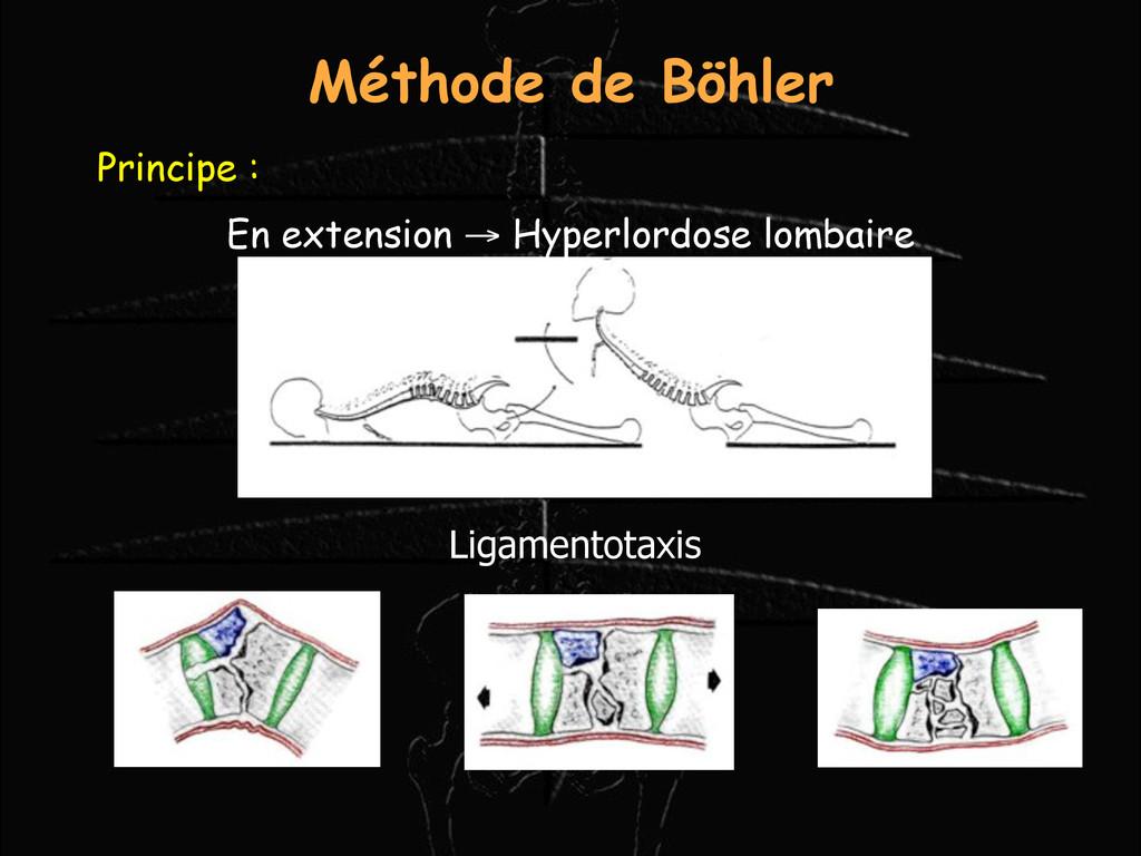 Principe : En extension → Hyperlordose lombaire...
