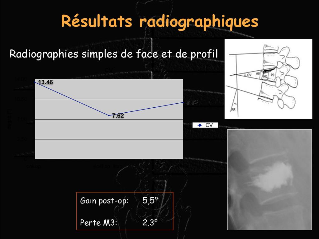 Résultats radiographiques Radiographies simples...