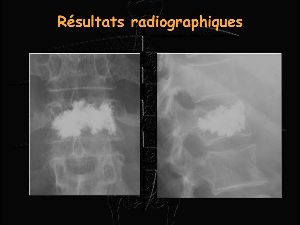 Résultats radiographiques