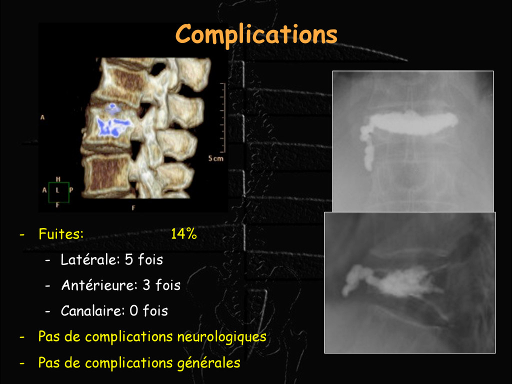Complications - Fuites: 14% - Latérale: 5 fois ...