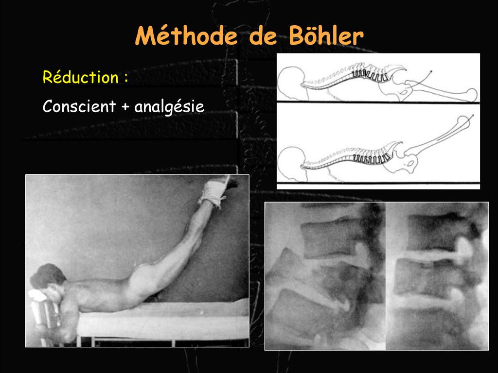 Réduction : Conscient + analgésie Méthode de Bö...