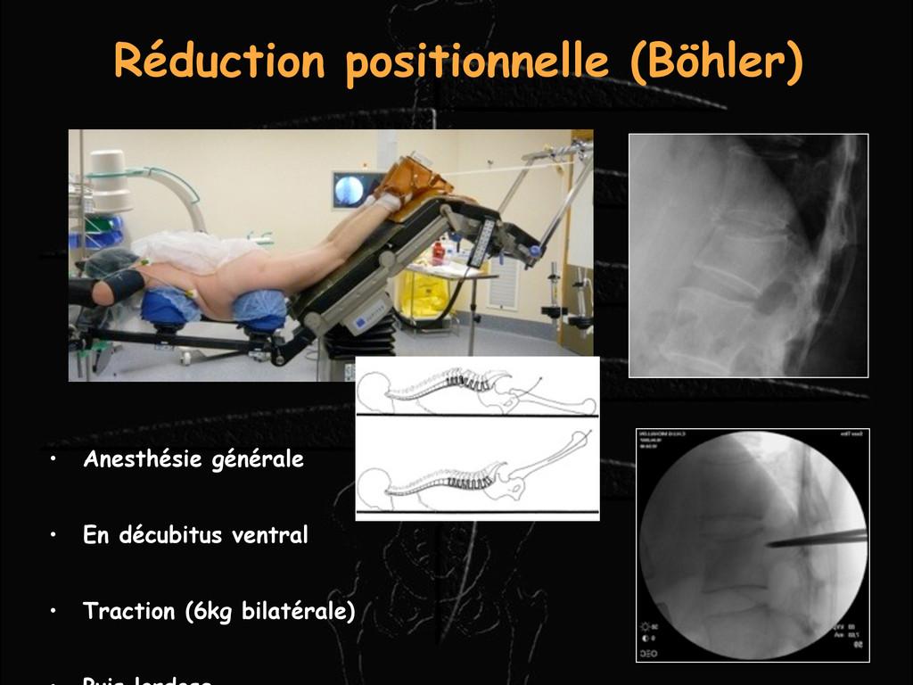 • Anesthésie générale • En décubitus ventral • ...