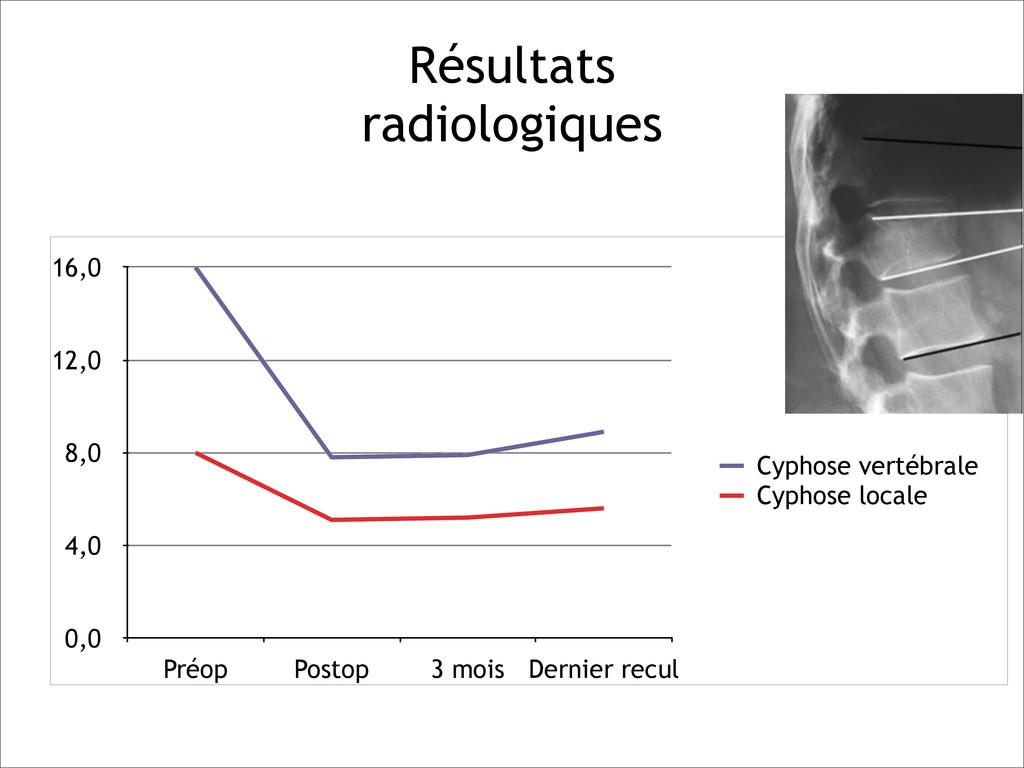 Résultats  radiologiques 0,0 4,0 8,0 12,0 16,0...