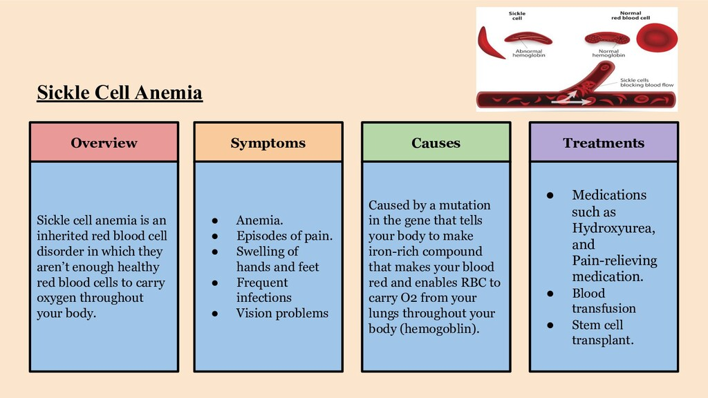 Sickle Cell Anemia Overview Symptoms Causes Tre...