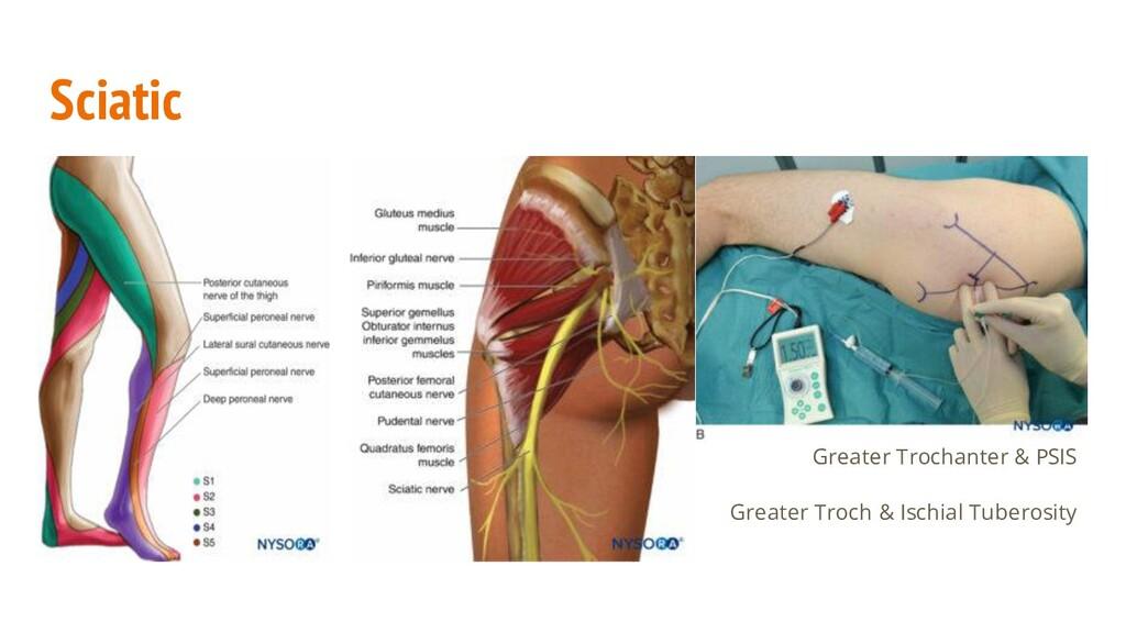 Sciatic Greater Trochanter & PSIS Greater Troch...