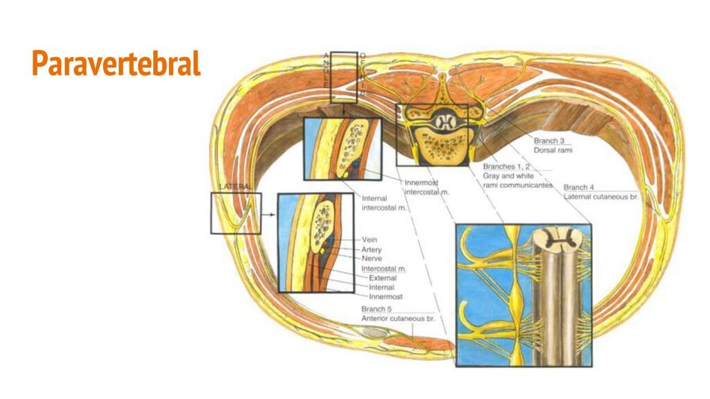 Paravertebral