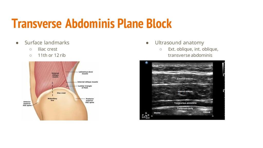Transverse Abdominis Plane Block ● Surface land...