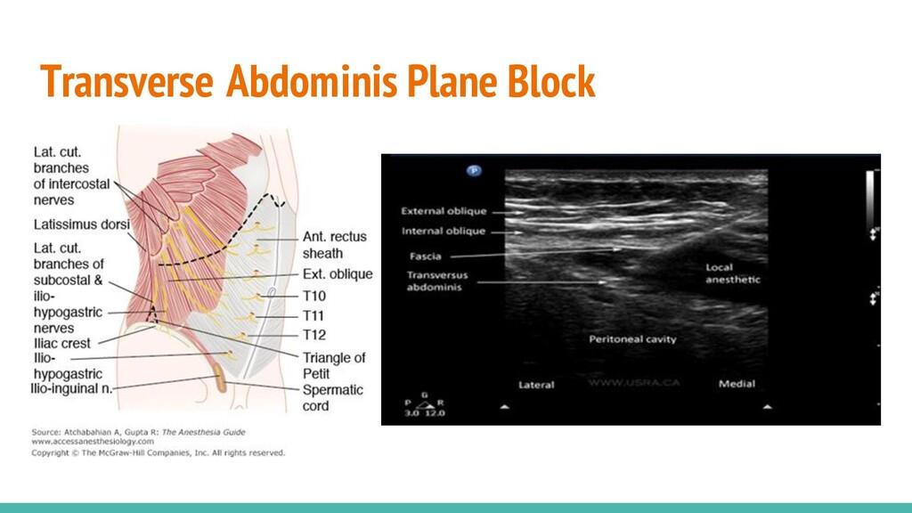 Transverse Abdominis Plane Block