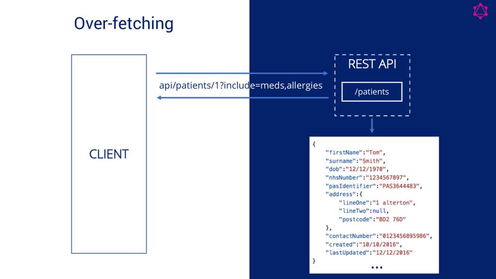 Over-fetching REST API /patients CLIENT … api/p...