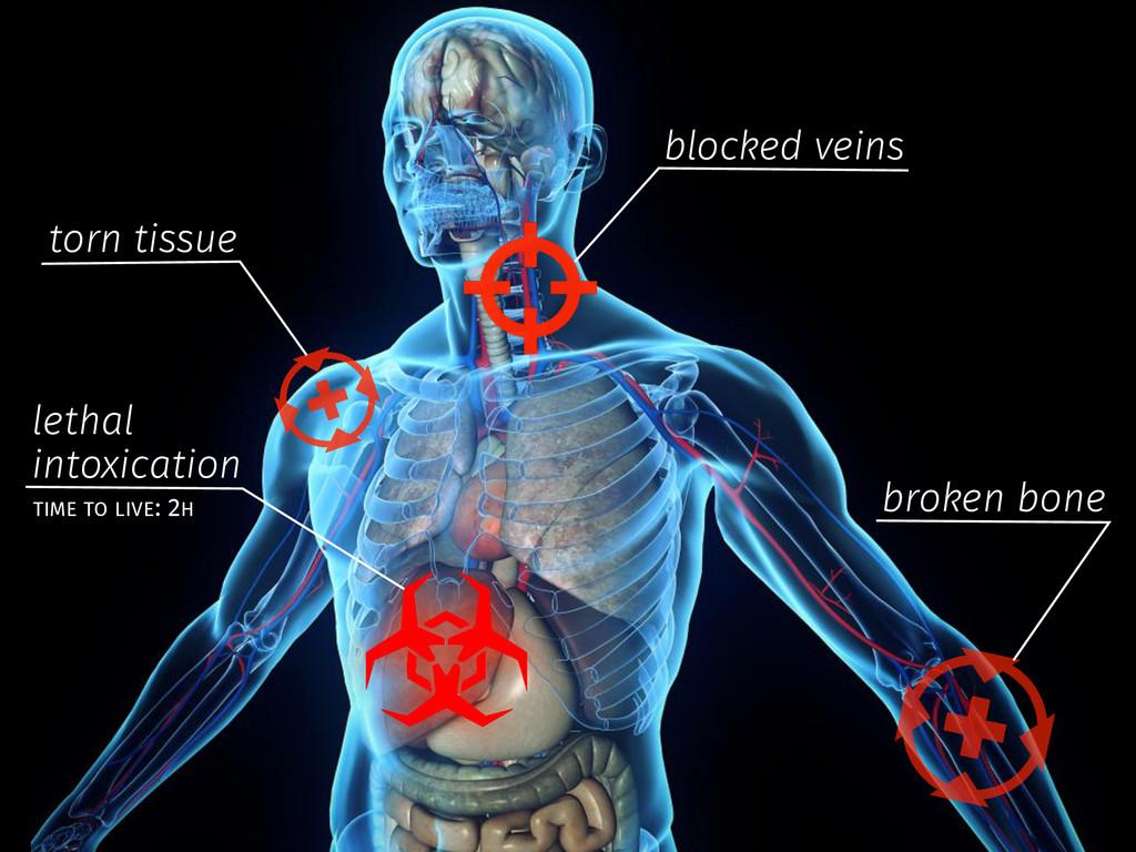 blocked veins torn tissue broken bone lethal in...