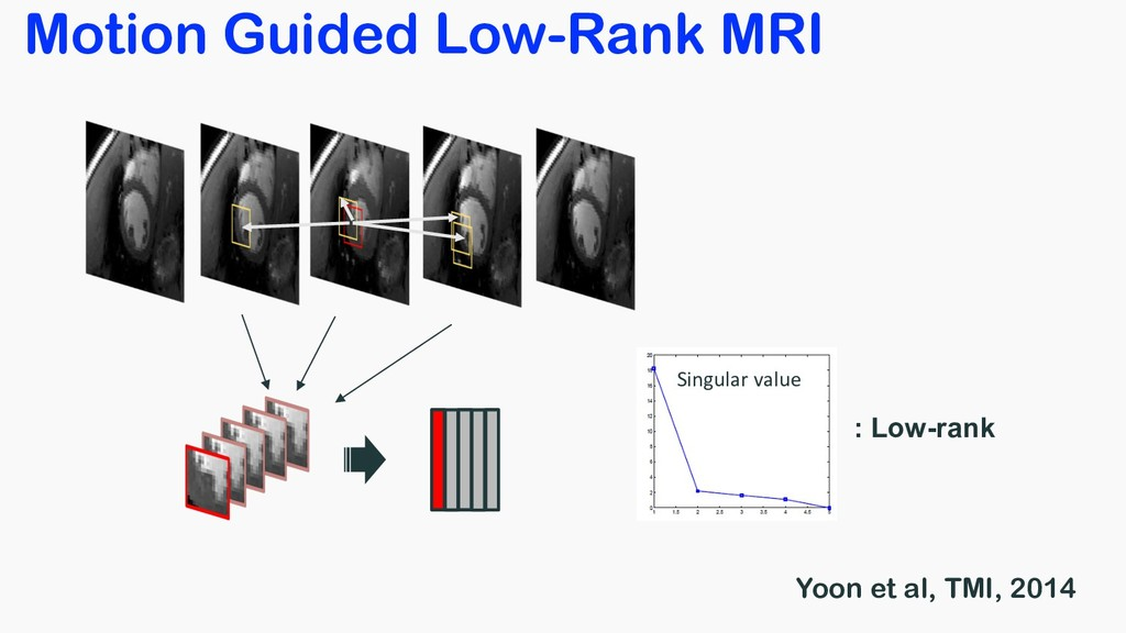 Motion Guided Low-Rank MRI Singular value : Low...