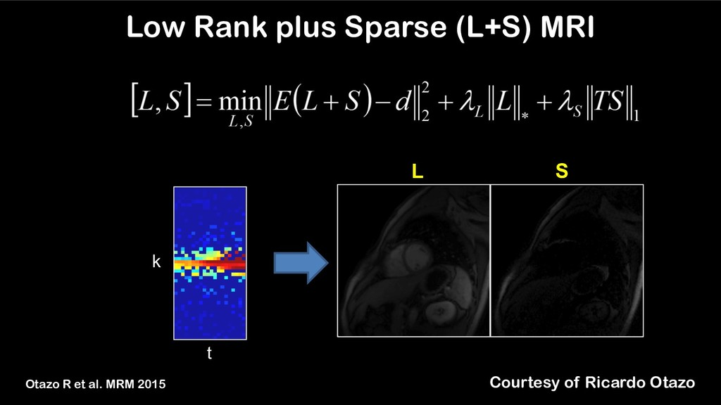 L S k t Low Rank plus Sparse (L+S) MRI Otazo R ...