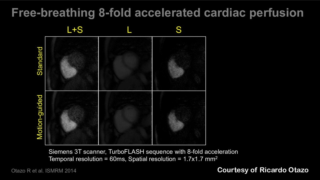 Free-breathing 8-fold accelerated cardiac perfu...
