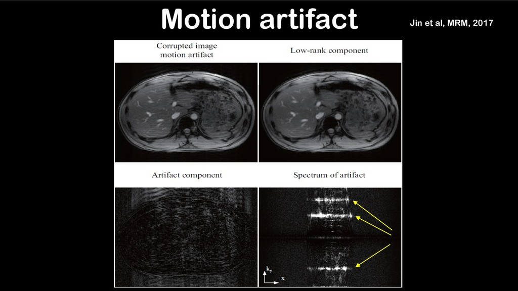 Instructed motion (3 times) Motion artifact Jin...