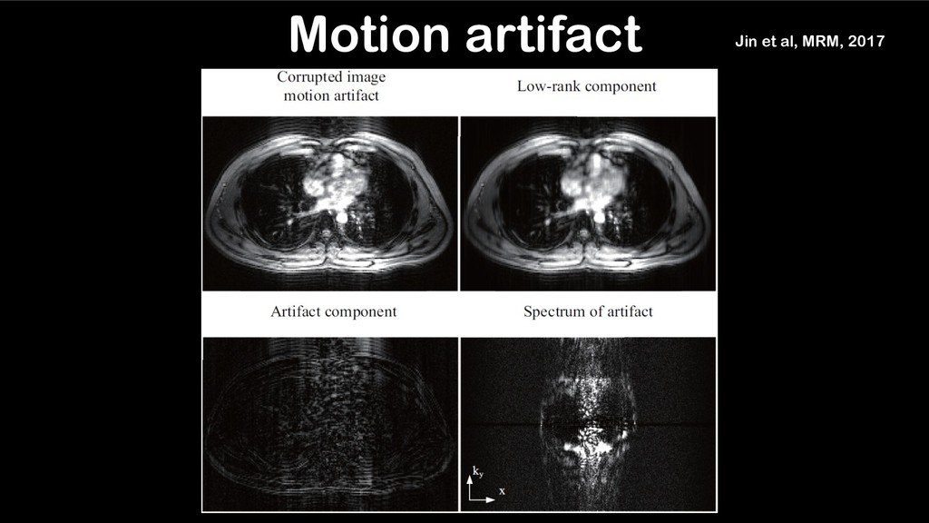 Motion artifact Jin et al, MRM, 2017
