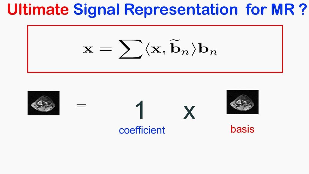 Ultimate Signal Representation for MR ? = <late...