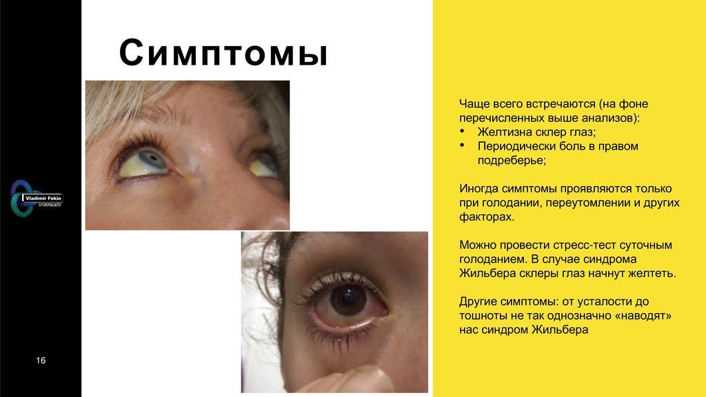 16 Симптомы Чаще всего встречаются (на фоне пер...