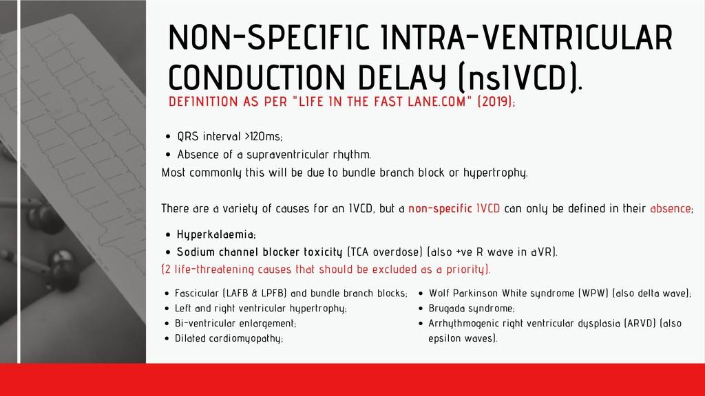 NON-SPECIFIC INTRA-VENTRICULAR CONDUCTION DELAY...