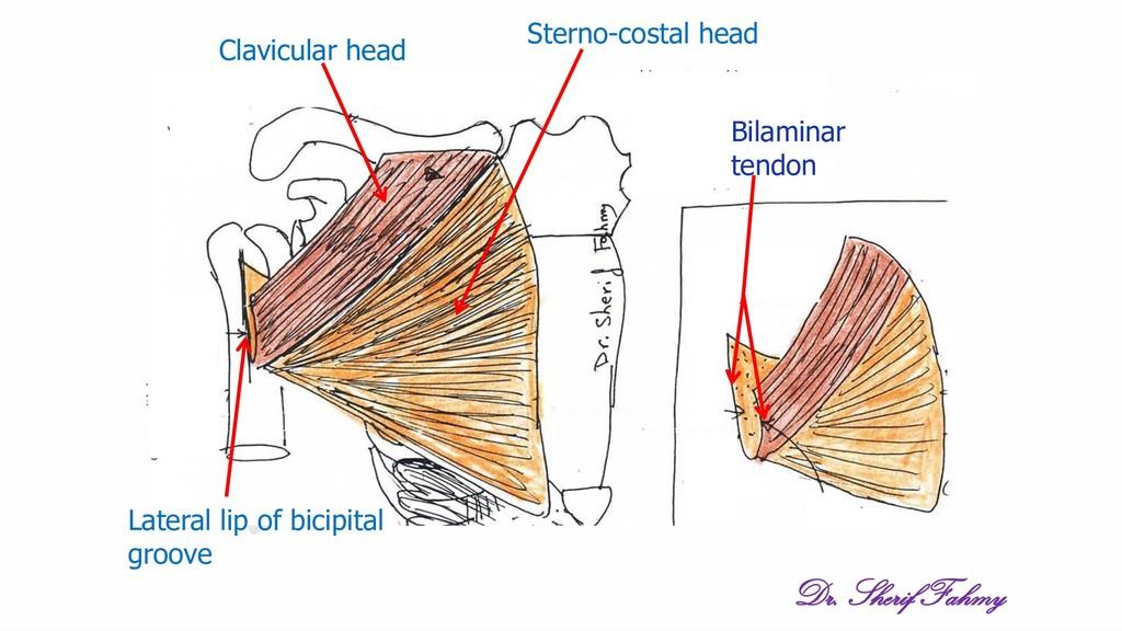Clavicular head Sterno-costal head Lateral lip ...