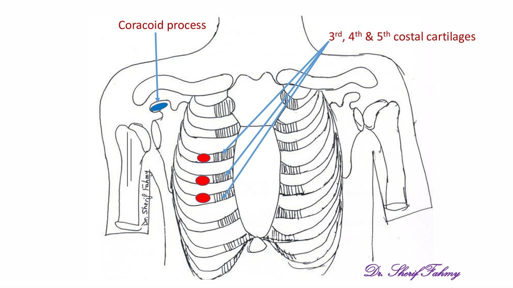 3rd, 4th & 5th costal cartilages Coracoid proce...