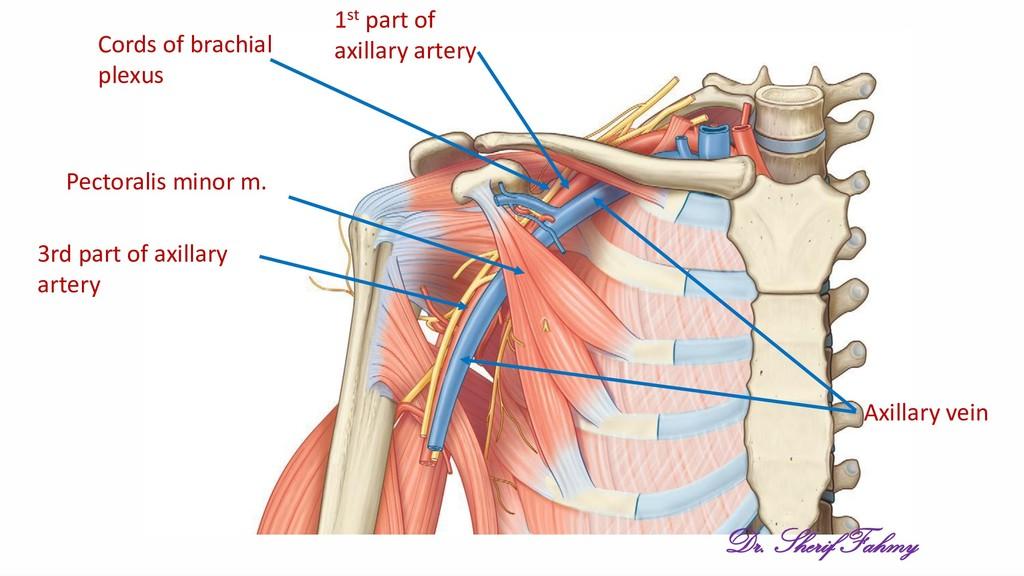 Pectoralis minor m. Axillary vein 1st part of a...